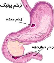 دانلود پاورپوینت زخم پپتیک peptic ulcer